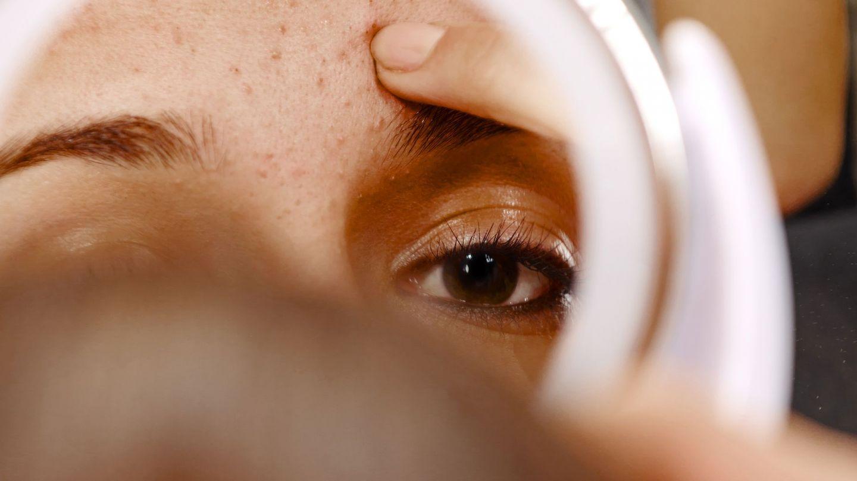 Akne: Eine junge Frau sieht ihr Gesicht in einen Spiegel.
