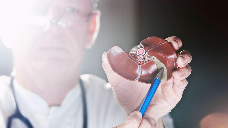 Krebs der Gallenblase und der Gallengänge: Ein Arzt hält in seiner linken Hand das Modell einer Leber mit Gallenblase. In der rechten Hand hält er einen Kugelschreiber, mit dem er auf die Gallenblase zeigt.