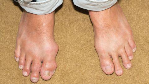 Gicht: Zwei nackte Füße eines Mannes, der auf einem Boden steht.