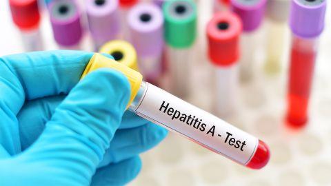 Hepatitis A: Eine Hand mit blauem Schutzhandschuh hält ein Blutteströhrchen mit einem Aufkleber mit der Aufschrift Hepatitis A.