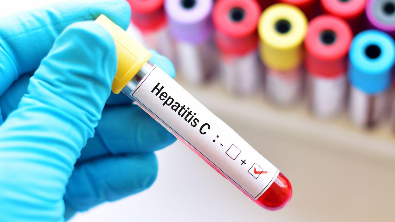 Hepatitis C: Eine Hand mit blauem Schutzhandschuh hält ein Blutteströhrchen mit einem Aufkleber mit der Aufschrift Hepatitis C.