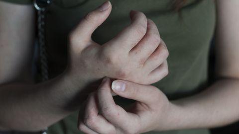 Krätze: Die Hände einer Frau weisen einen rötlichen Ausschlag auf. Mit der einen Hand kratzt die Frau sich ihre andere Hand.