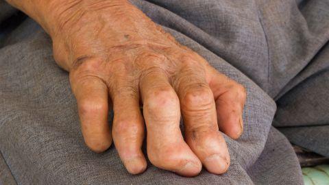 Eine von Lepra gezeichnete Hand liegt auf dem Oberschenkel einer Person. Die Finger der Hand sind deformiert.