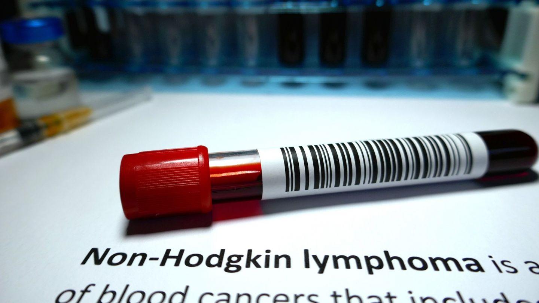 Non-Hodgkin-Lymphom: Auf einem weißen Untergrund liegt eine Blutprobe, die mit einem Barcode versehen ist.
