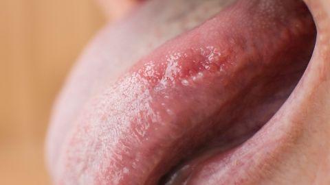 Eine herausgetreckte Zunge, deren Mund vermutlich von einer Pilzinfektion befallen ist.