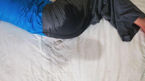Enuresis: Eine erwachsene Person liegt seitlich in einem Bett. Ihre Hose weist am Gesäß eine dunkle Farbstelle auf. Auch der Bettbezug hat in Höhe des Gesäßes eine dunklere Stelle. Die Person hat sich und das Bett offenbar eingenässt.