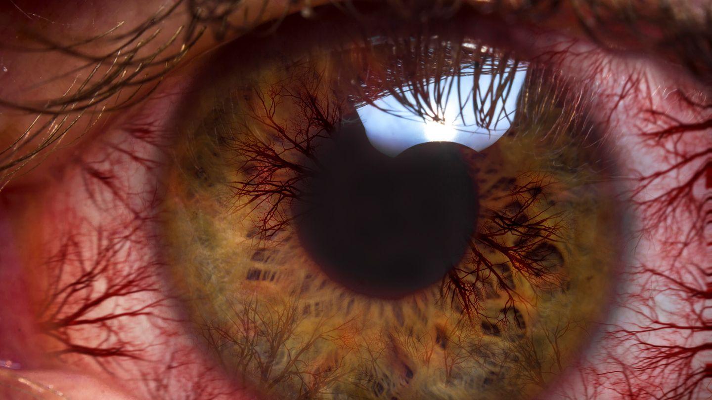 Bindehautentzündung (Konjunktivitis): Nahaufnahme eines menschlichen Auges. Gut zu erkennen sind zahlreiche feine und rote Blutäderchen an der weißfarbenen Linse. Am oberen Rand der Pupille spiegelt sich Licht.