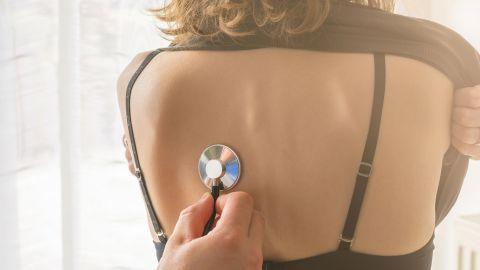 Akute Bronchitis: Eine Frau sitzt in einem Behandlungszimmer, hat ihren Rücken freigemacht. Eine Person steht hinter der Frau, hält ein Stethoskop und hört die Lunge der Frau ab.