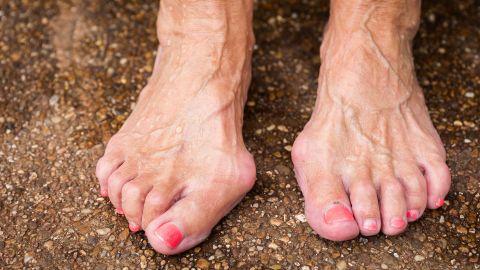 Hallux Valgus: Zwei Frauenfüße stehen auf dem Boden. An einem Fuß sind die Großzehen gespreizt, haben eine Fehlstellung.