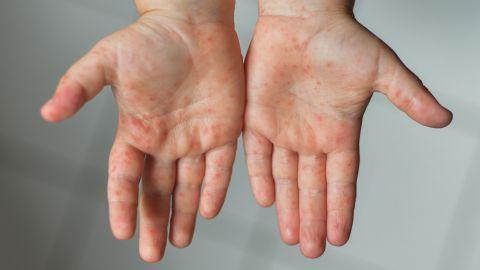Hand-Fuß-Mund-Krankheit: Bläschenartige Wunden auf den Händen eines Kindes.