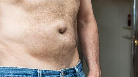 Hernien (Leistenbruch): Ein Mann zeigt seinen freien Oberkörper und Bauch.