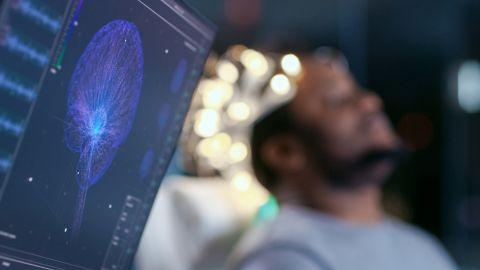 Ein EEG-Monitor zeigt das Bild eines gescanntes Schädels, durch den Nervenbahnen verlaufen. Im Hintergrund sitzt ein Mann auf einem Arztstuhl. Er hat seinen Kopf leicht nach hinten an die Lehne geneigt und scheint seine Aufen geschlossen zu haben.