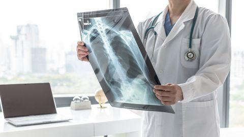 Lungenkrebs: Ein Arzt hält ein Röntgenbild der Lunge in beiden Händen.
