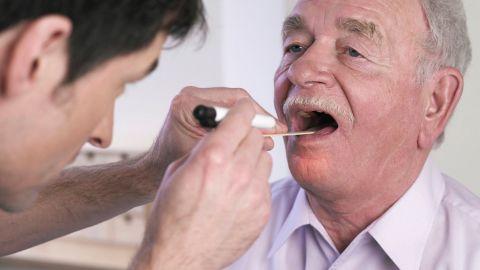 Mundhöhlenkrebs: Ein Arzt untersucht die Mundhöhle eines älteren Mannes. Der Mann hat seinen Mund weit geöffnet. Der Arzt drückt seine Zunge mit einem Holzmundspatel runter und leuchtet in seinen Mund.