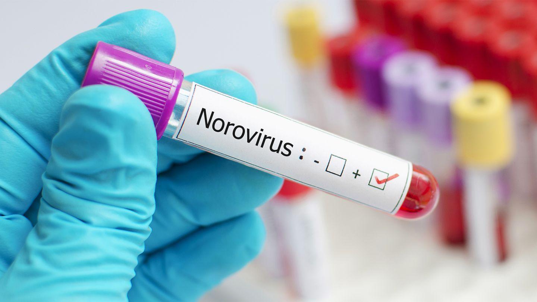 Norovirus: Blutteströhrchen mit einem Aufkleber eines positiven Norovirustests.