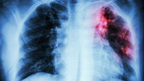 Tuberkulose: Eine Röntgenaufnahme des Brustkorbs. Eine rot-schwarze Verfärbung im linken Lungenflügel weist auf eine Tuberkuloseinfektion hin.